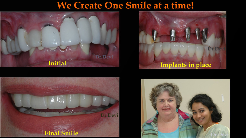 implant supported dentures glendale - Arrowhead Pros