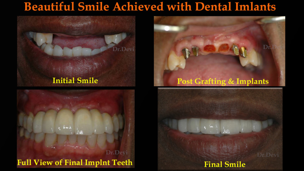 Beautiful Smile Achieved with Dental Implants