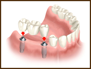 implant supported bridge