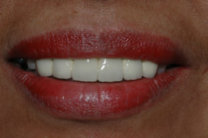 cosmetic-dental