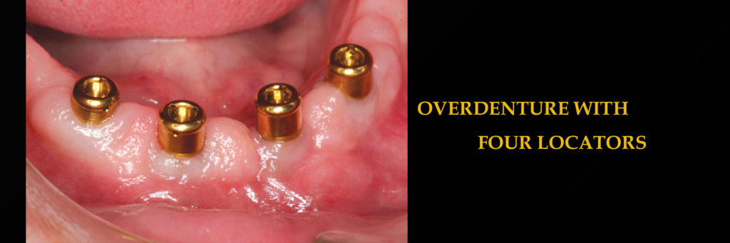 Overdenture with four Locarors – Implants Denture